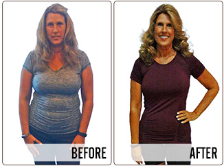 Success Stories - Marsha - Before and After