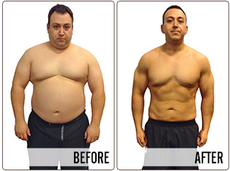 Success Stories - agustin - Before and After