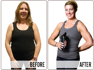 Success Stories - ANNE - Before and After
