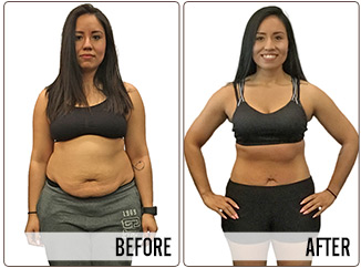 Success Stories - melissa - Before and After